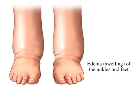 edema swelling of legs, ankles and feet