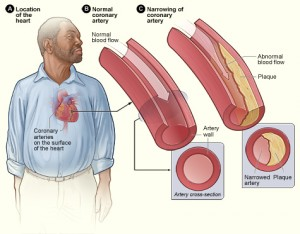 Coronary artery disease (CAD) is the most common type of